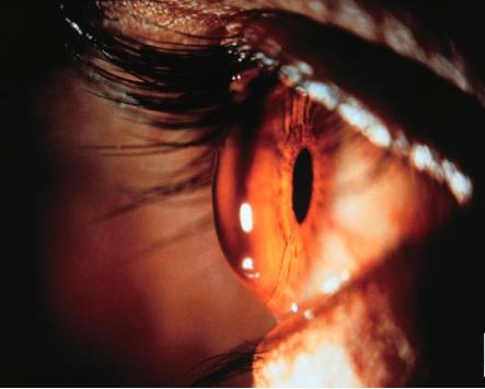 CHERATOCONO: cos'è e come correggerlo con le lenti a contatto