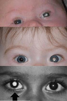 Grazie ad una fotografia si può rilevare una patologia oculare