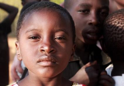 occhi marroni, scuri dipendono dalla quantità di melanina nell'iride