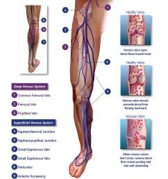 diagram of veins healthy vs varicose [ 2700 x 3600 Pixel ]