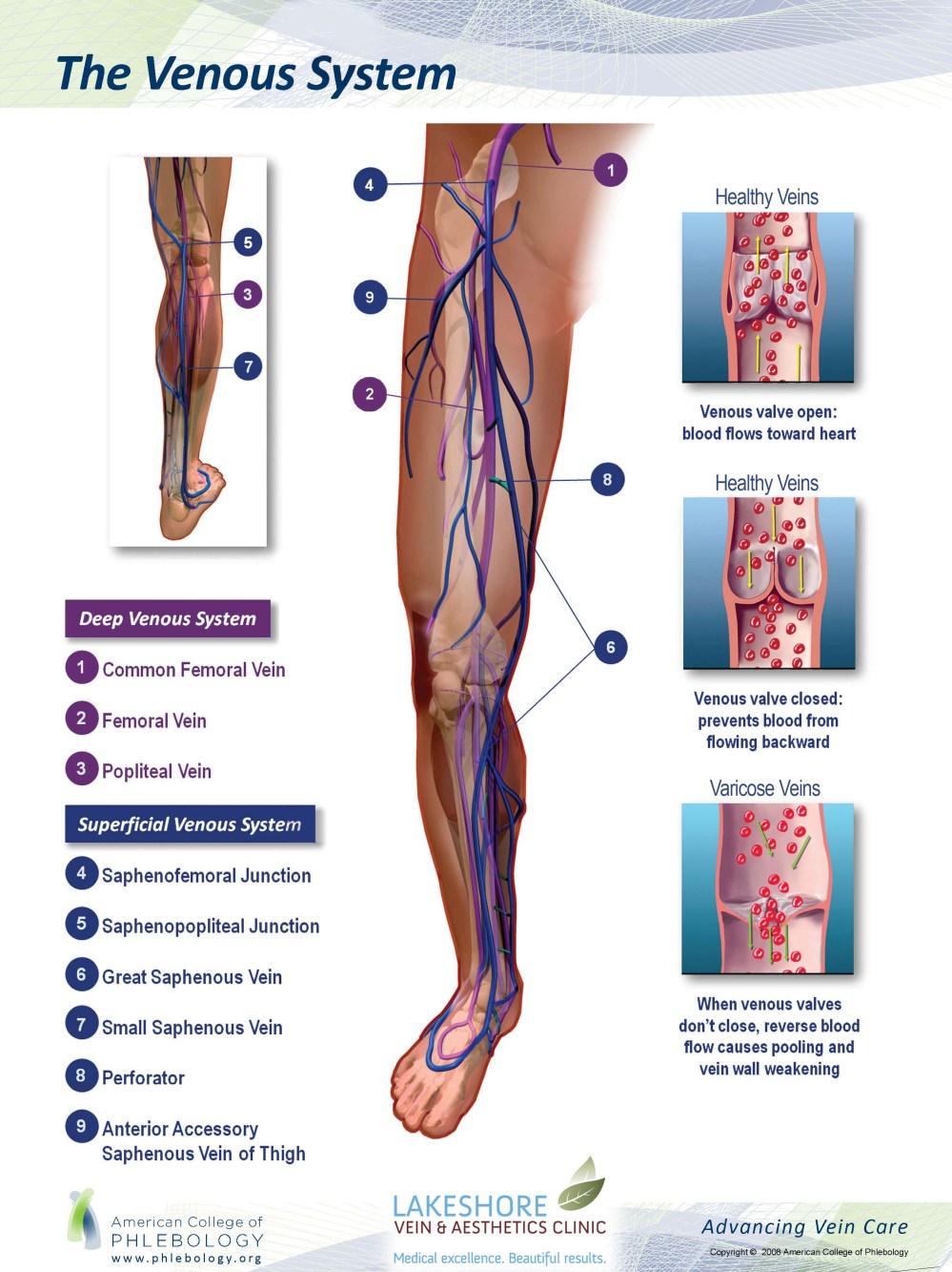 medium resolution of diagram of veins healthy vs varicose