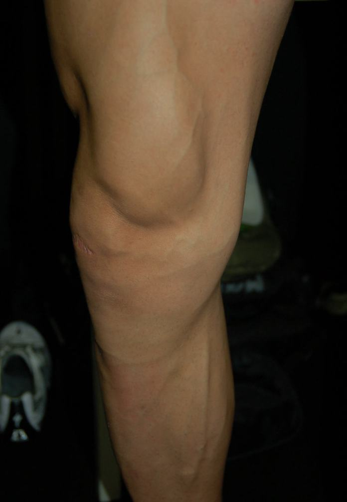 You need legs like this to win 27 six days.