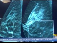 Tumore al seno: i consigli dei medici durante Ottobre rosa