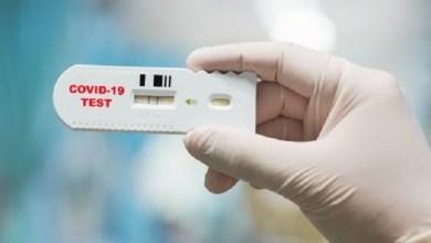 Test rapidi: le farmacie del Veneto orientale che aderiscono