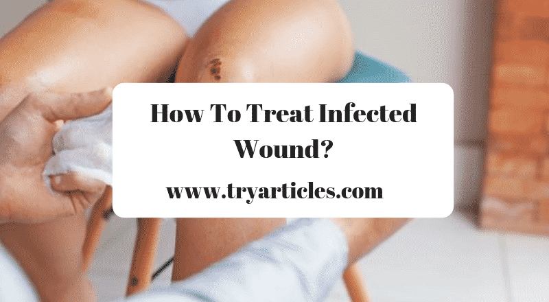 8 Signs Of Wound Infection: How To Treat An Infected Cut?