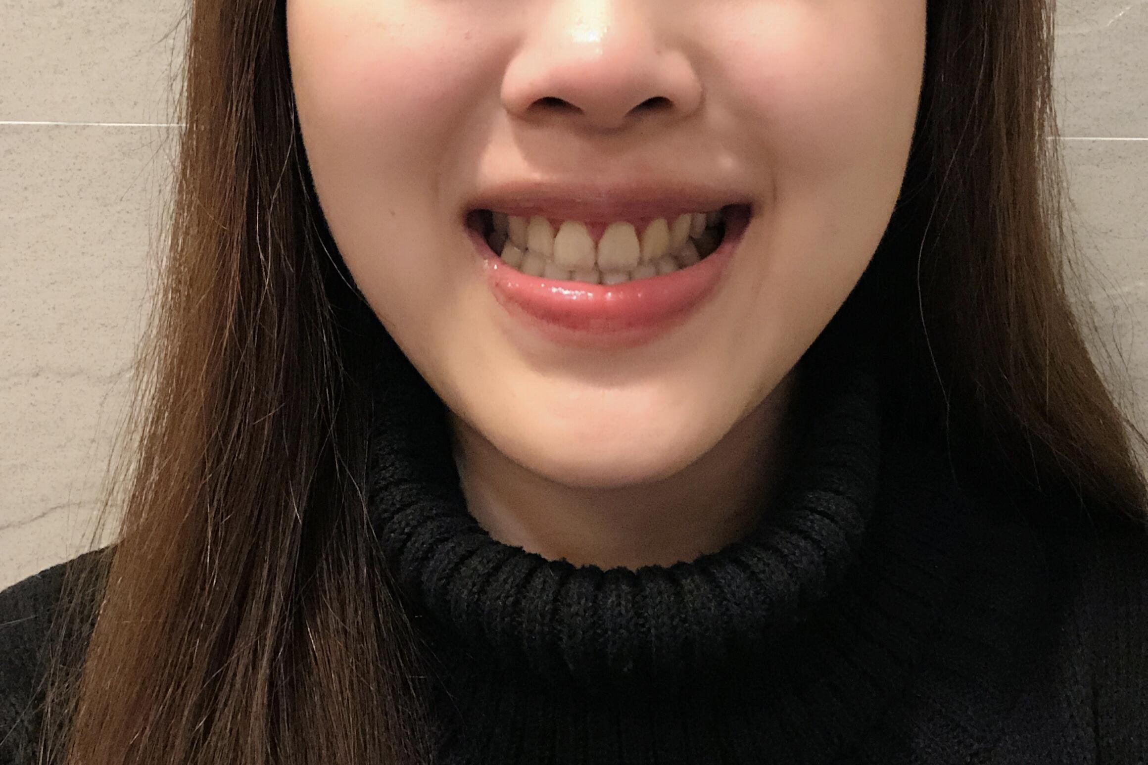 水雷射牙齦整形 ★和牙齦說再見的日子★ Sarsha | 似真牙醫
