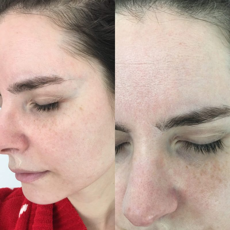 The Truth About Rodan Fields Do The Products Work Veronika S