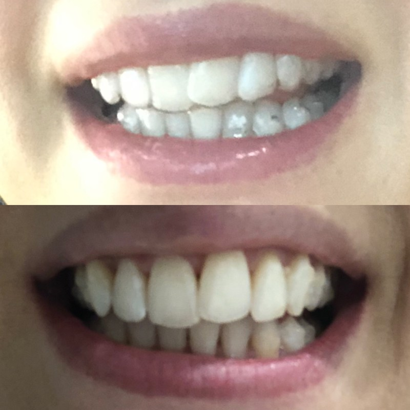 Veronika S Blushing 18 Weeks: Why I'm Doing Invisalign & My Experience So Far