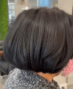 Alopecia e Prótese Capilar