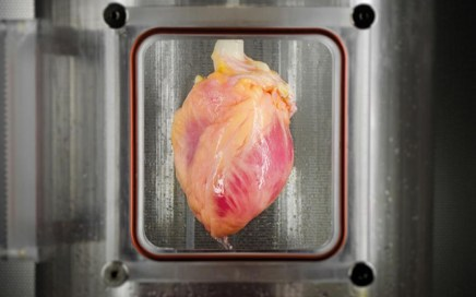 Functional heart muscle regenerated in decellularised human hearts