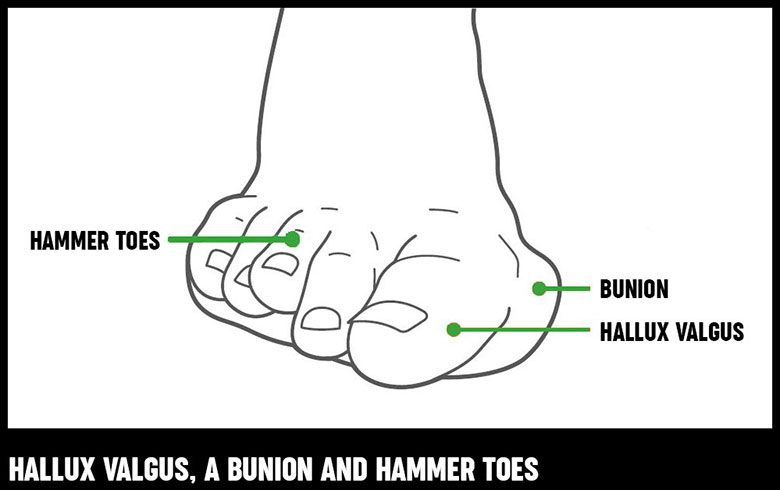 joints of the foot diagram nordyne fan wiring and ankle pain causes exercises treatments a showing what hallux valgus bunion hammer toes looks