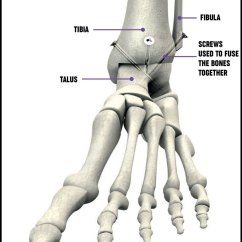 Bones In Your Foot Diagram 5 Wire To 4 Trailer Wiring And Ankle Surgery Treatment Options Versus Arthritis A Showing The Placement Of Screws For An