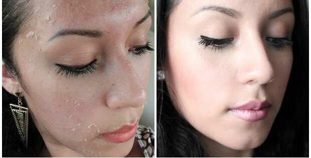 remedios caseros para las cicatrices en la cara