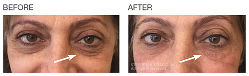 EyeRise Under Eye Fillers NYC | Before After Photos Pricing