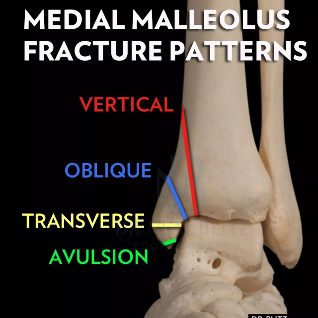 Ankle-Fracture-NYC-Medial-Malleolus-Types.jpg