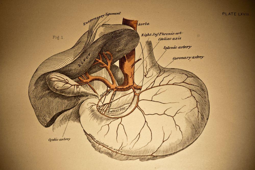 medium resolution of gallstones and back pain