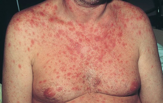 The HIV Rash