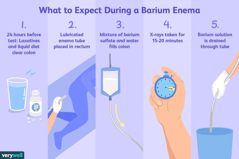 Barium Enema: Uses Side Effects Procedure Results