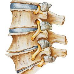 Nerves In Neck And Shoulder Diagram Swm 840 Wiring Pinched Nerve Symptoms The Or Back Depiction Of A Spine With Spondylosis Facet Joint Hypertrophy