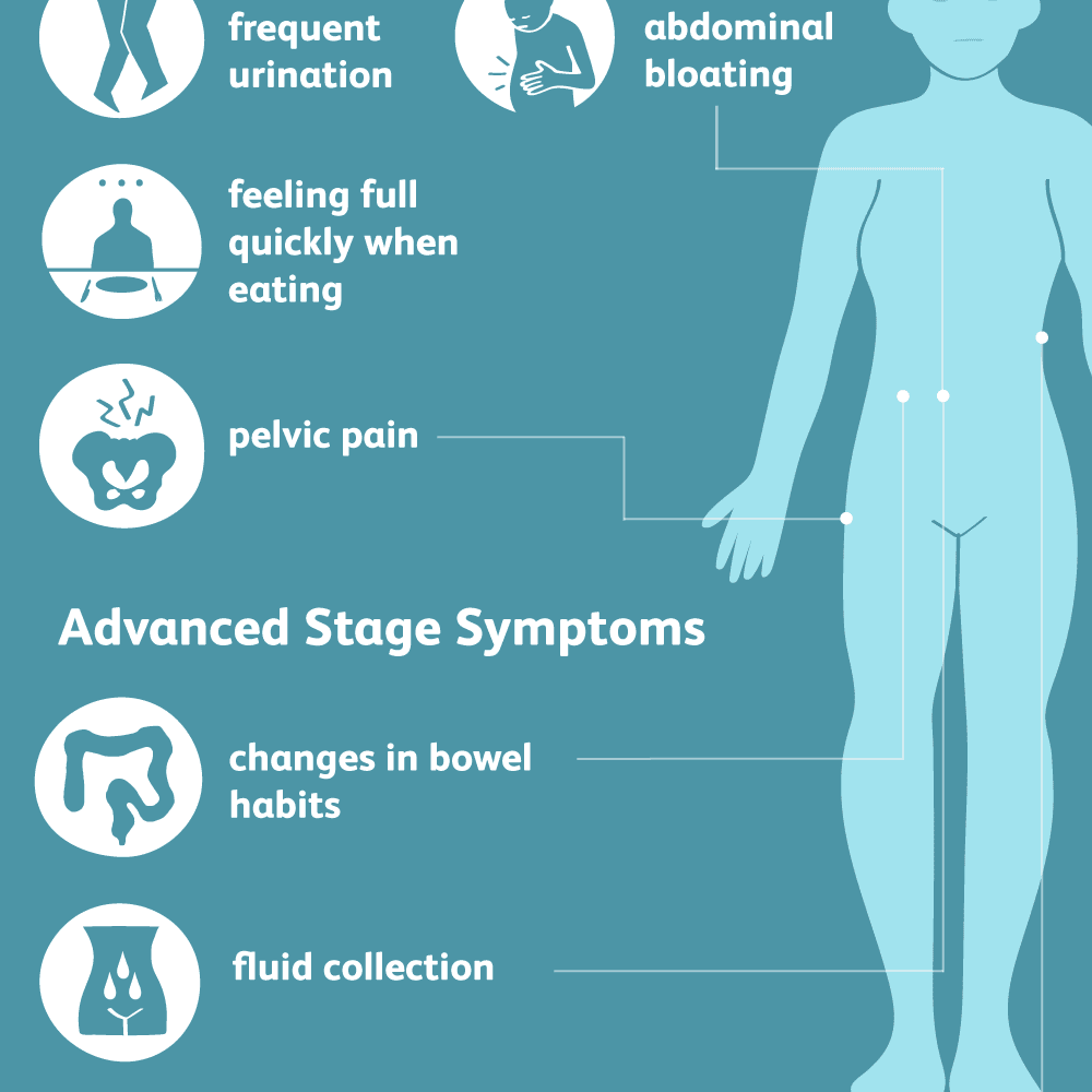 hight resolution of ovarian cancer symptoms