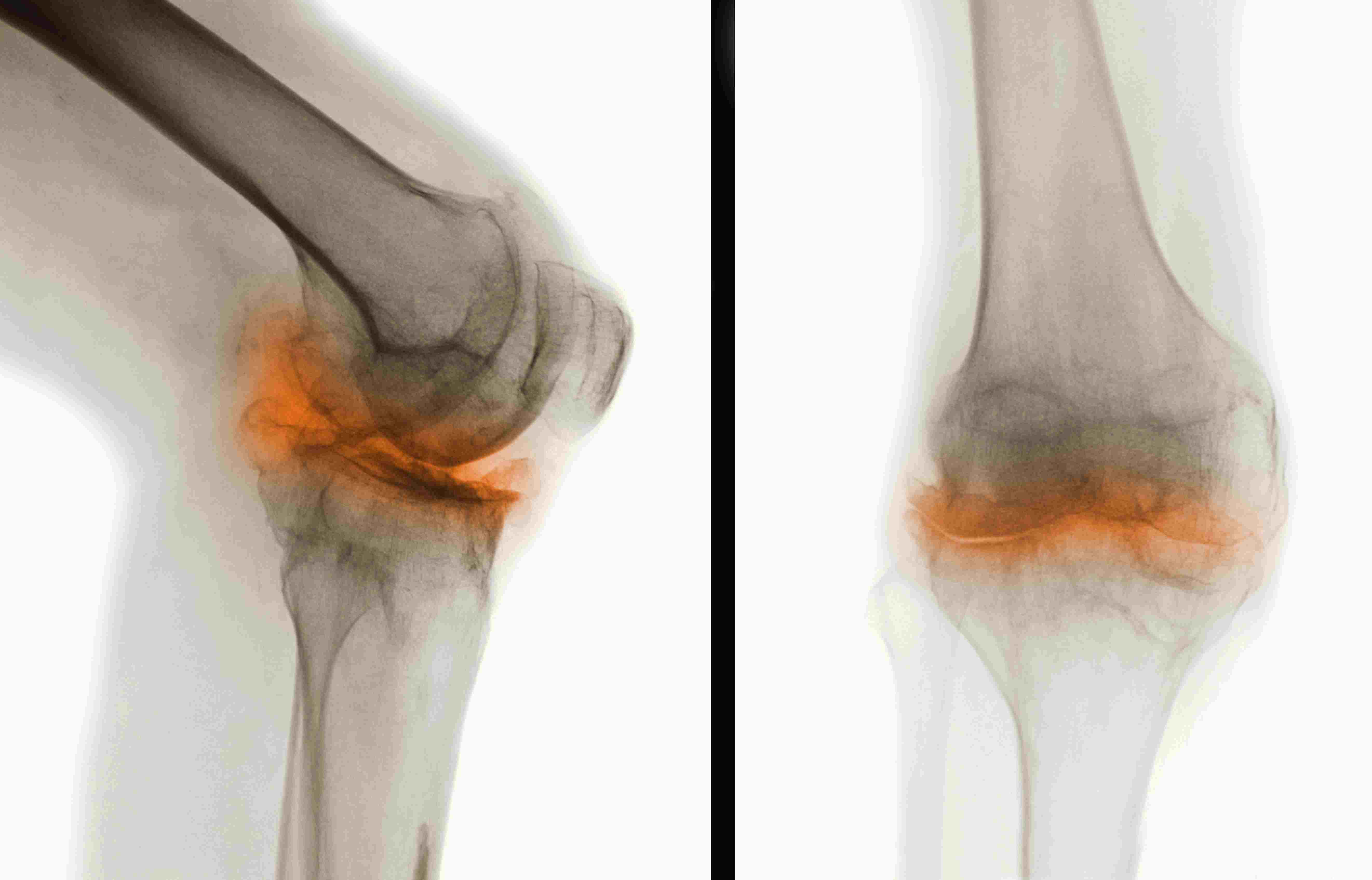 Overview Of Osteoarthritis With Pictures
