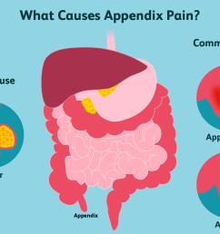 appendix pain causes [ 1500 x 1000 Pixel ]