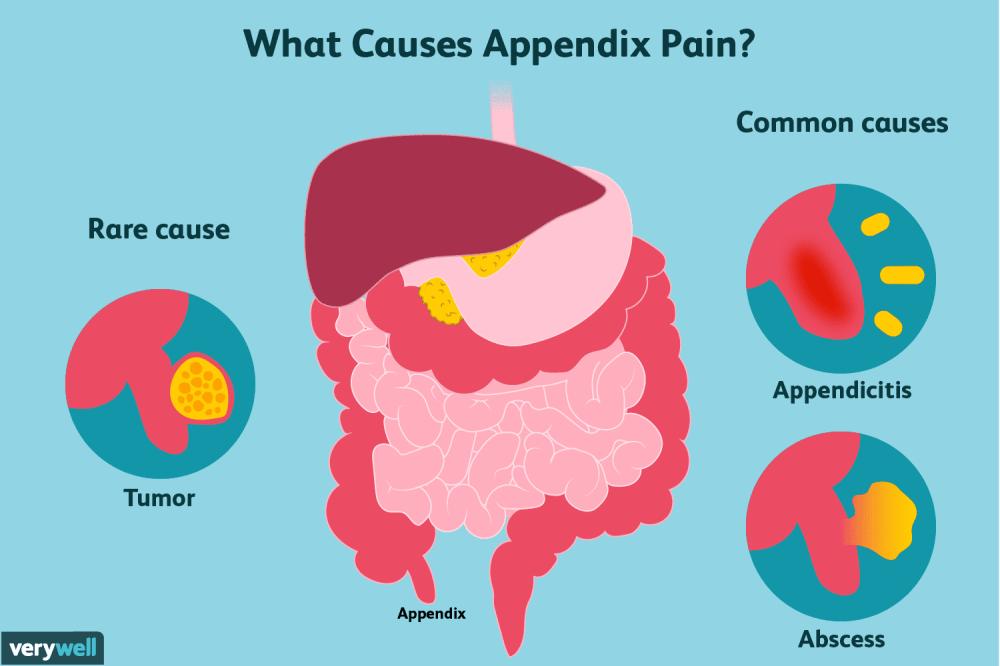 medium resolution of appendix pain causes