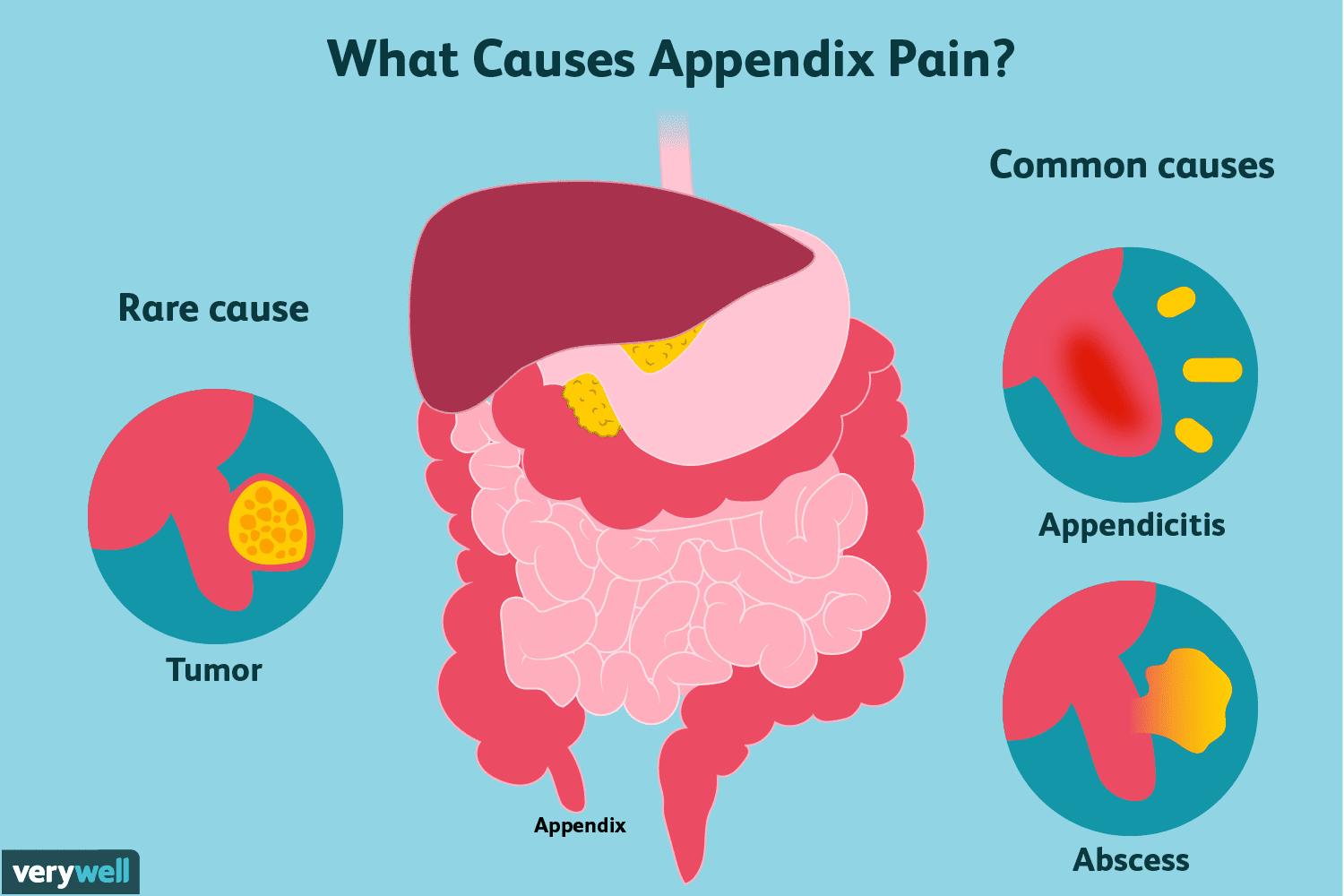 hight resolution of appendix pain causes