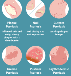 psoriasis symptoms [ 1001 x 1001 Pixel ]