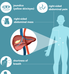 liver cancer symptoms [ 1000 x 1000 Pixel ]