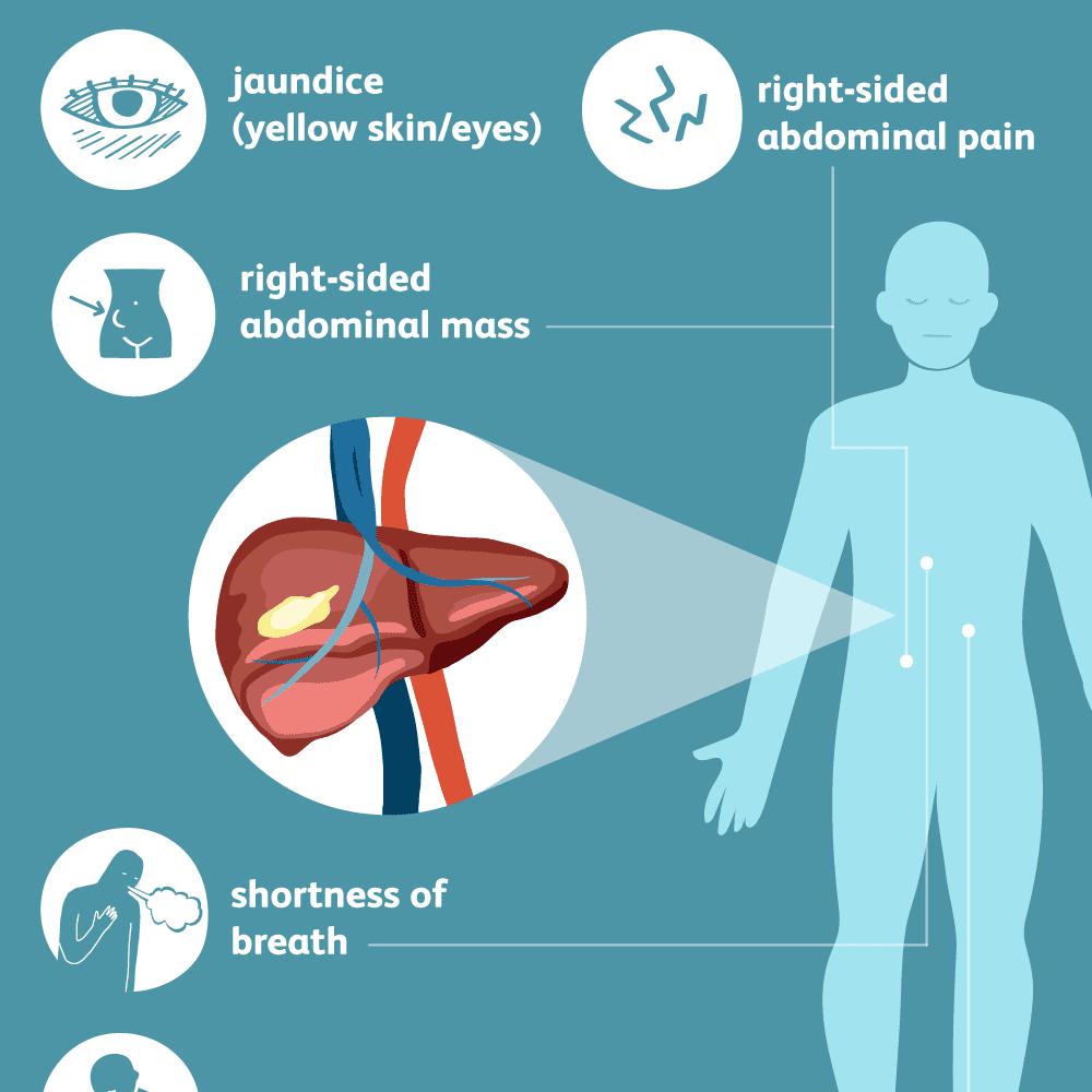 hight resolution of liver cancer symptoms