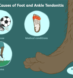 causes of foot and ankle tendonitis [ 1500 x 1000 Pixel ]