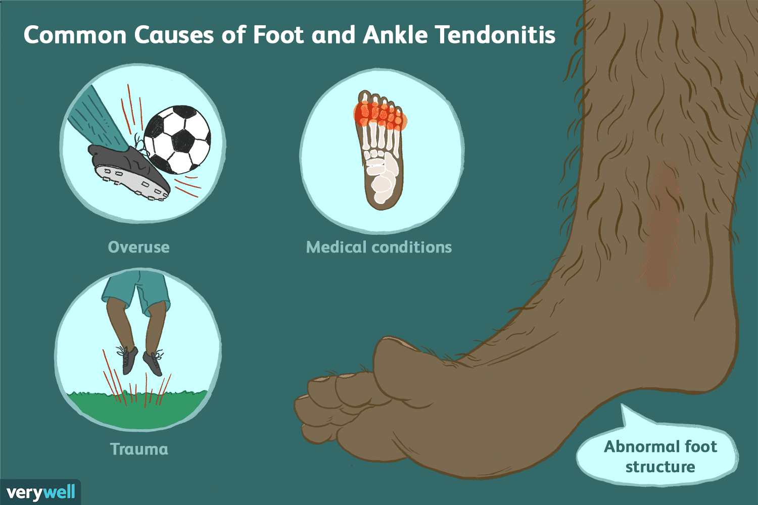 hight resolution of causes of foot and ankle tendonitis
