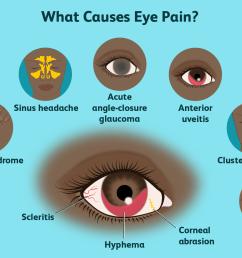 eye pain causes [ 1500 x 1000 Pixel ]