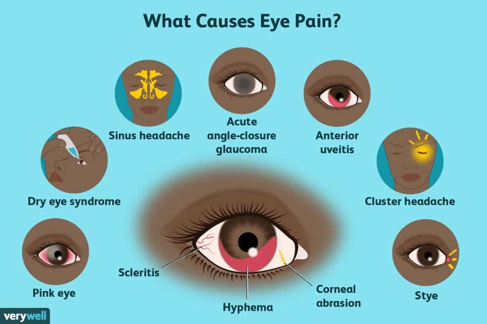 medium resolution of eye pain causes