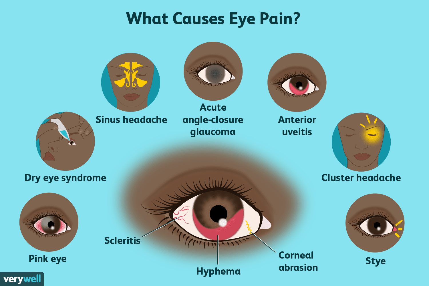 hight resolution of eye pain causes