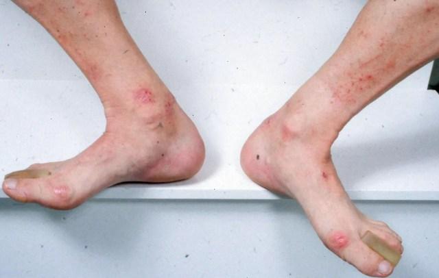 dermatitis herpetiformis on legs and feet