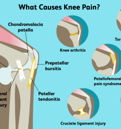what causes knee pain  [ 1500 x 1000 Pixel ]