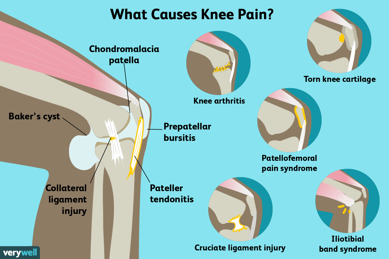 hight resolution of what causes knee pain