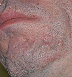 ice pick scars [ 1280 x 854 Pixel ]