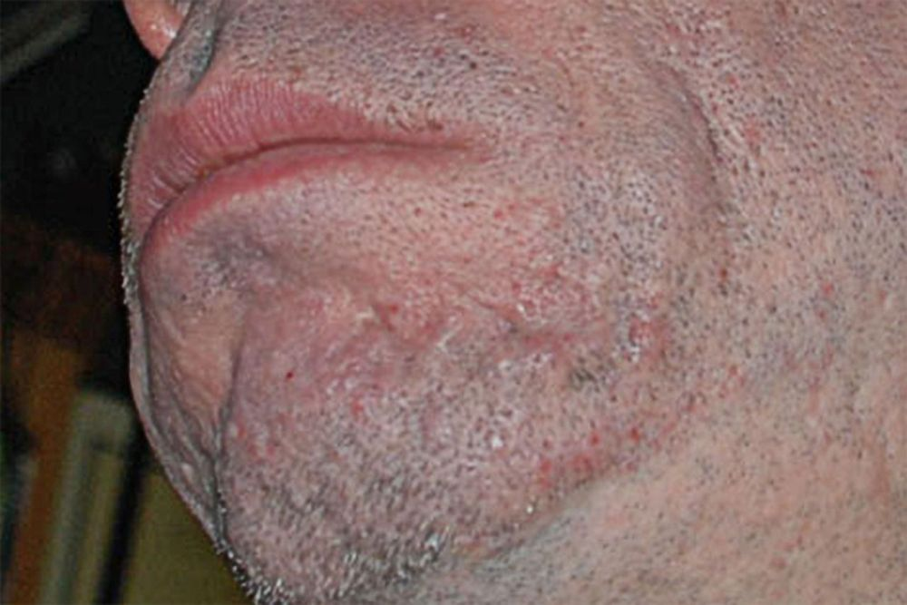 medium resolution of ice pick scars