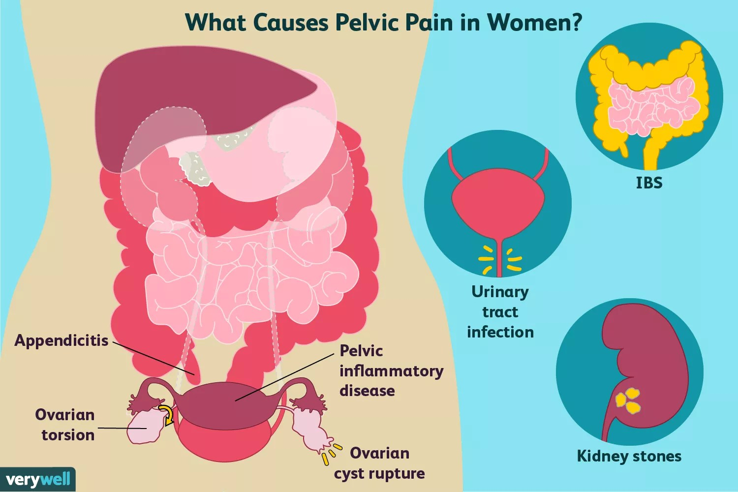 causes of pelvic pain in women