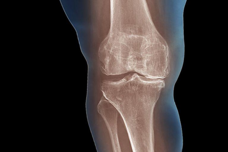 Causes and Treatment of Degenerative Arthritis