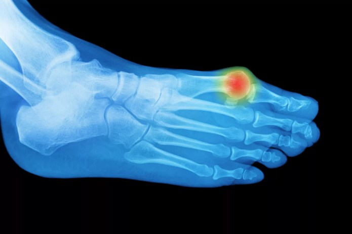 A bunion seen with hallux limitus.