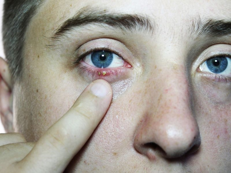 How Styes Are Treated