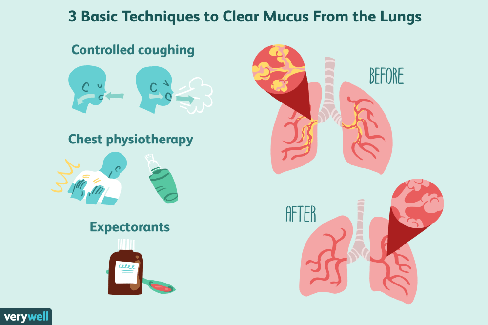 medium resolution of techniques to clear mucus from the lungs