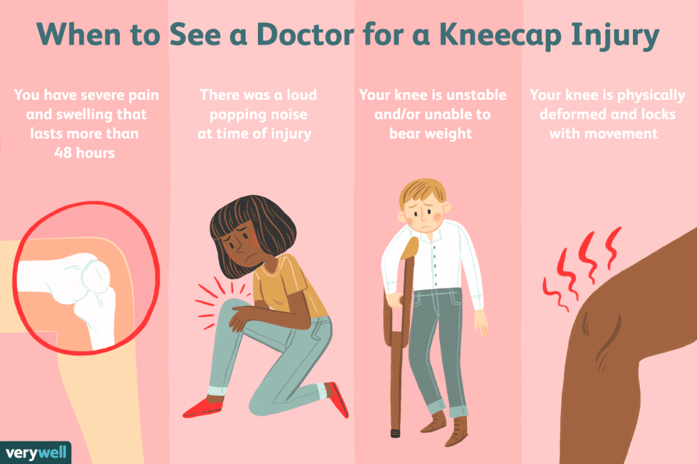medium resolution of how to tell if you have a kneecap injury