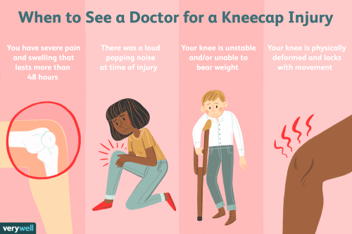 small resolution of how to tell if you have a kneecap injury