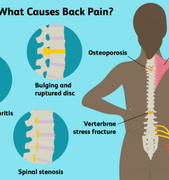 back pain causes illustration  [ 1500 x 1000 Pixel ]