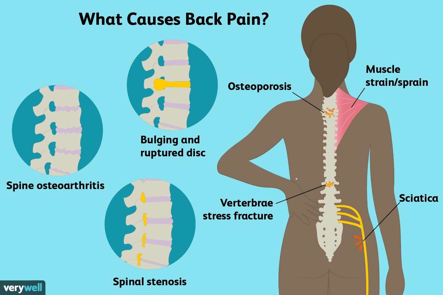 hight resolution of back pain causes illustration